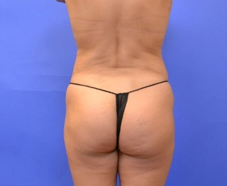 Fat Transfer to Buttocks/Hips Before
