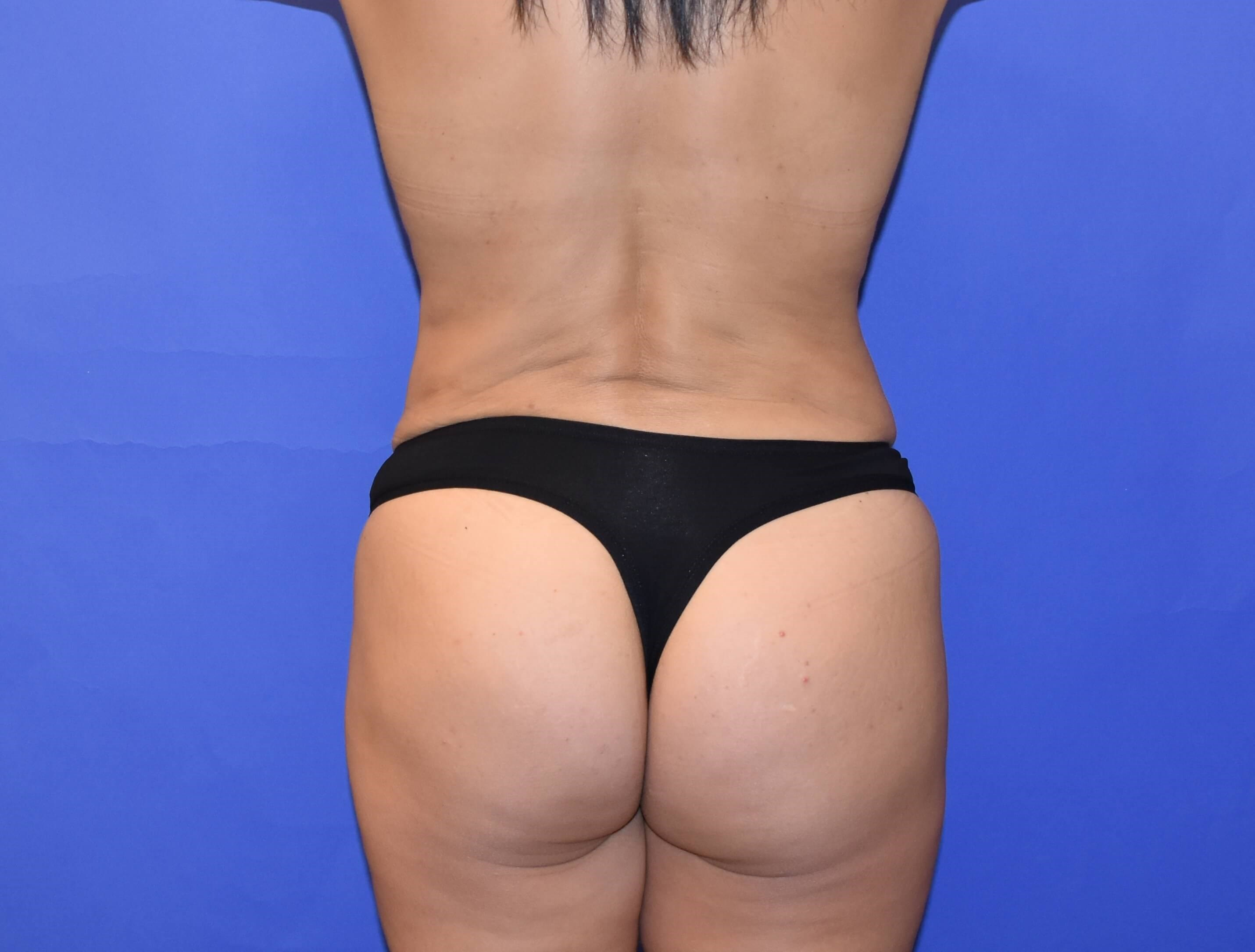 Fat Transfer to Buttocks/Hips After