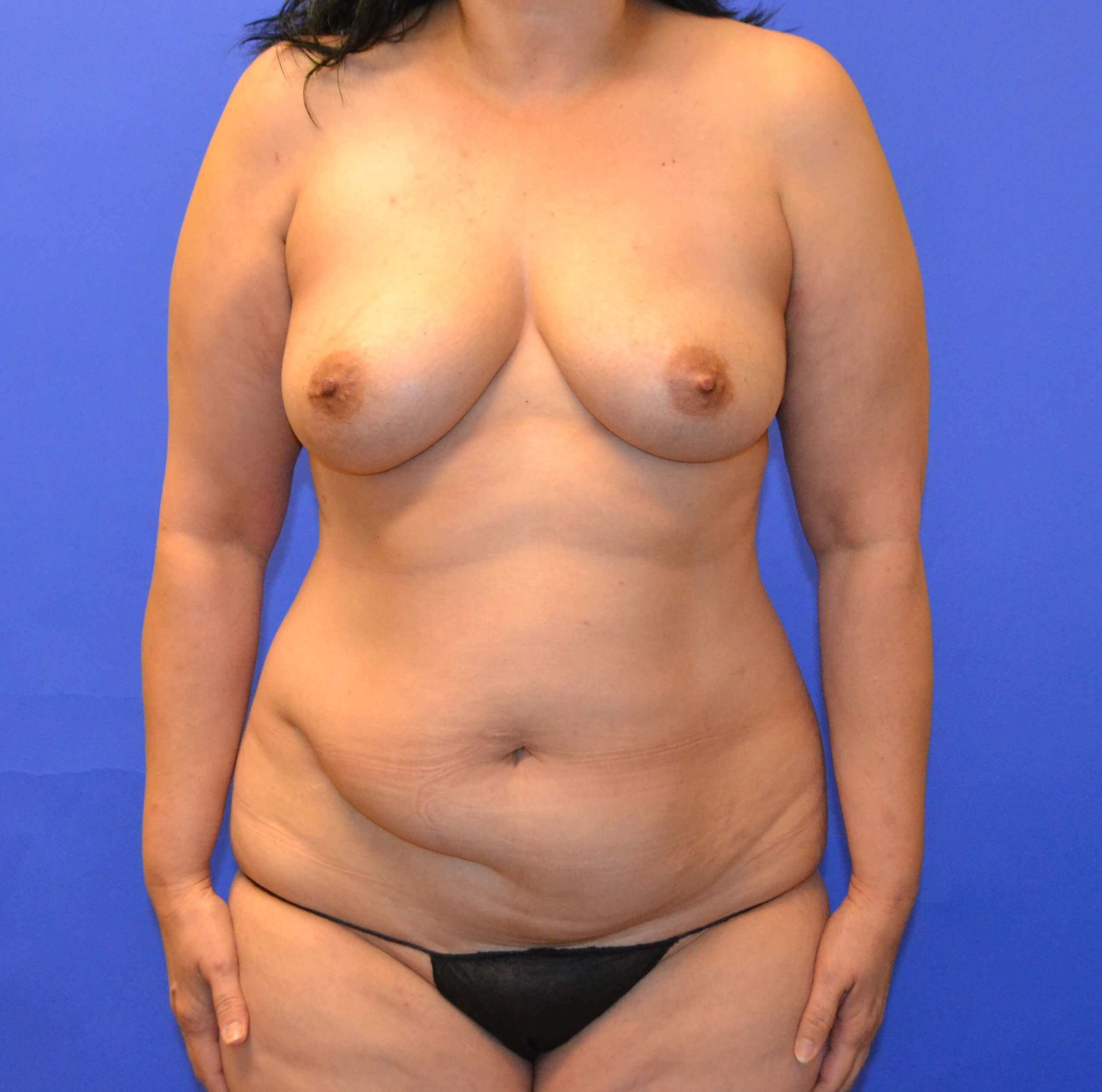Breast Augmentation Katy, TX Before
