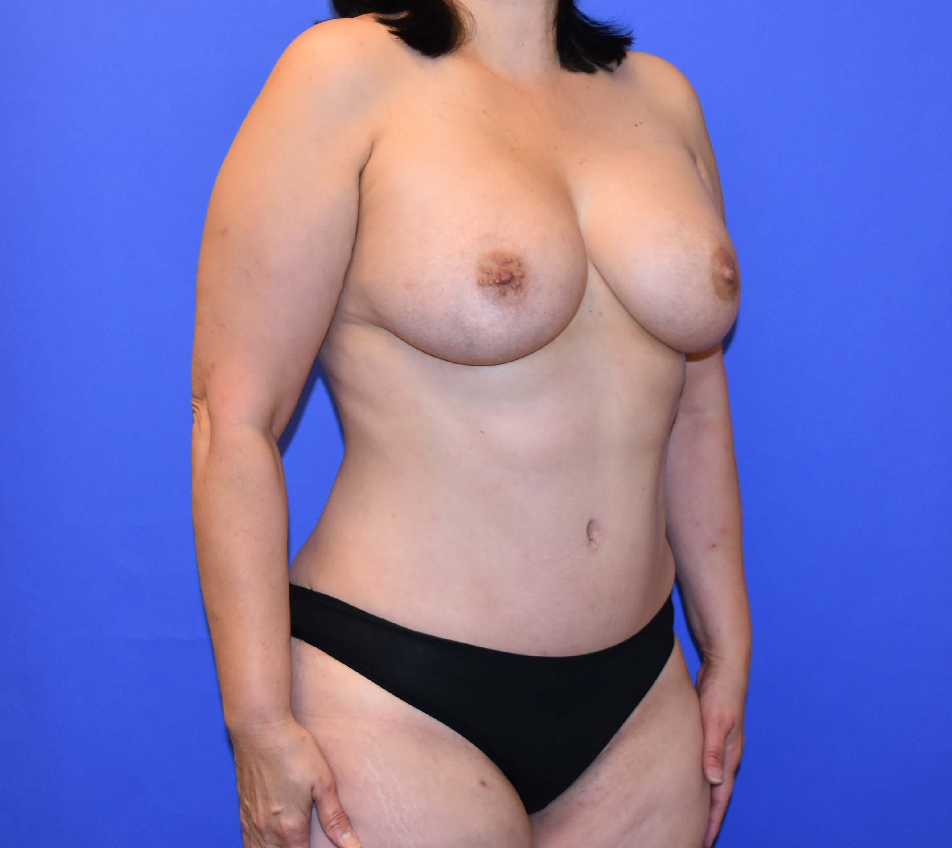 Breast Augmentation Katy, TX After