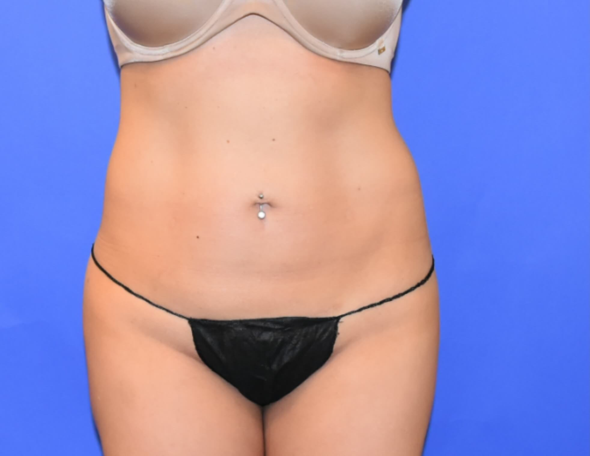 Mini Tummy Tuck Houston Before