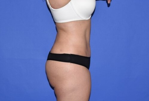 Mini Tummy Tuck Houston After