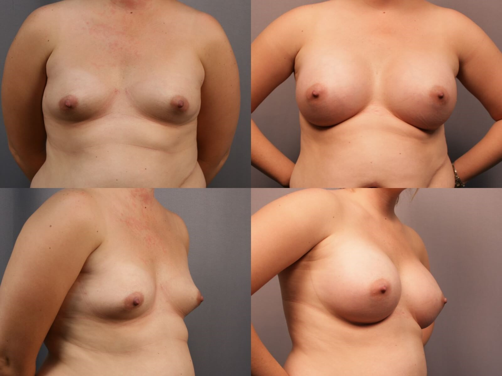 Breast Augmentation Katy Before