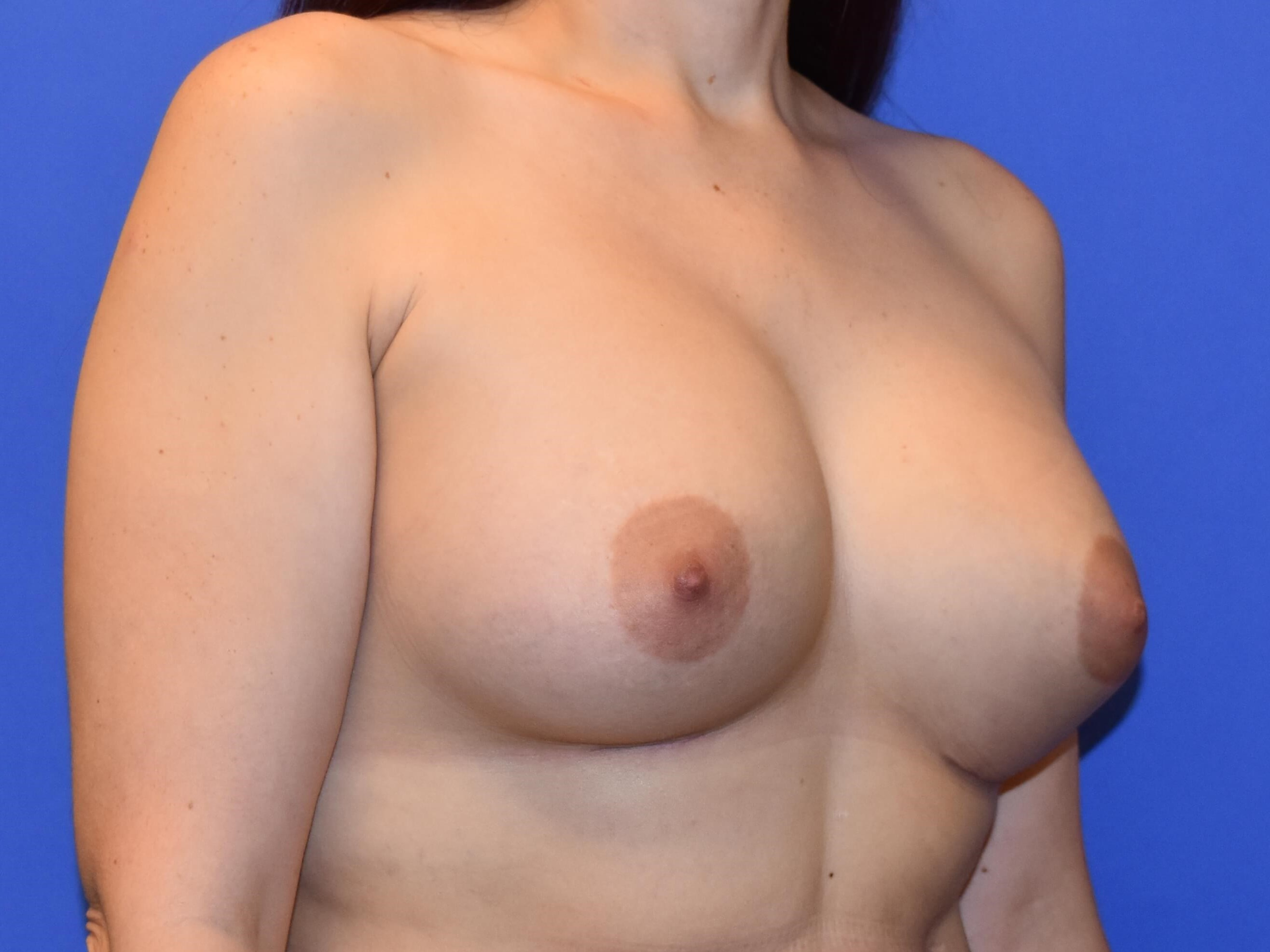 Breast Augmentation - Houston 3 month post-op
