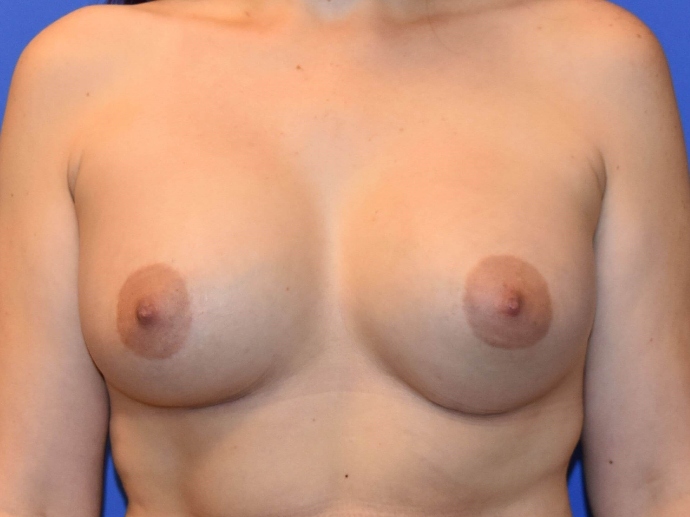 Breast Augmentation - Houston 3 months post-op