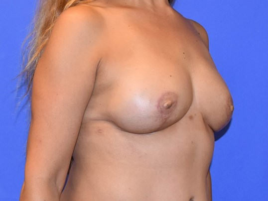 Houston Breast Reconstruction After