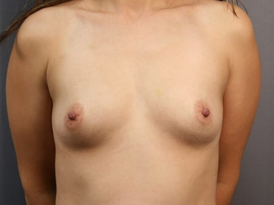 Breast Augmentation Sugar Land Before