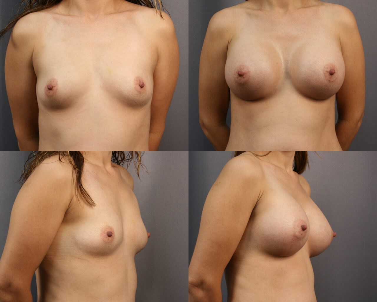 Breast Augmentation Sugar Land After