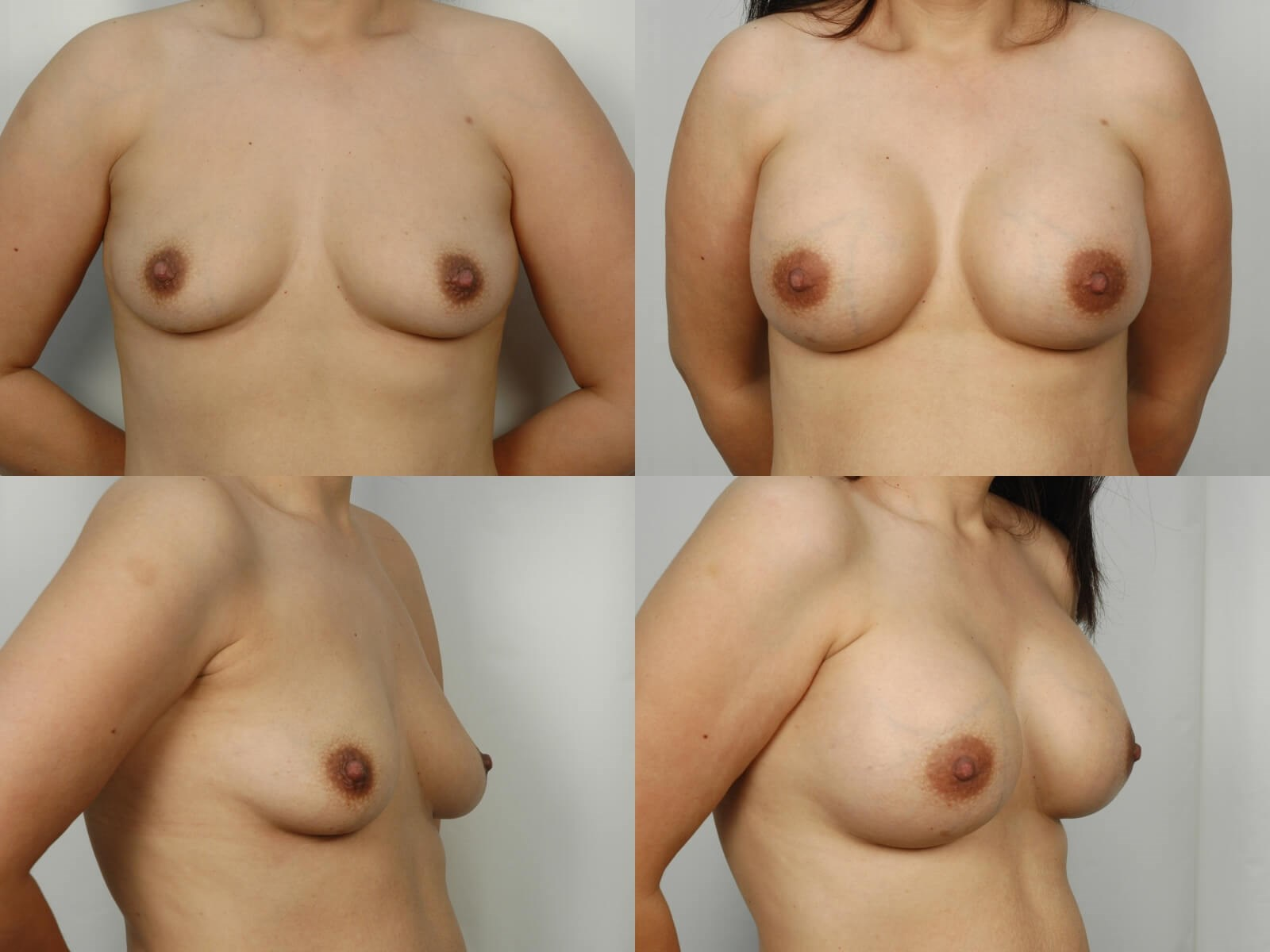 Breast Augmentation Houston After 1 month