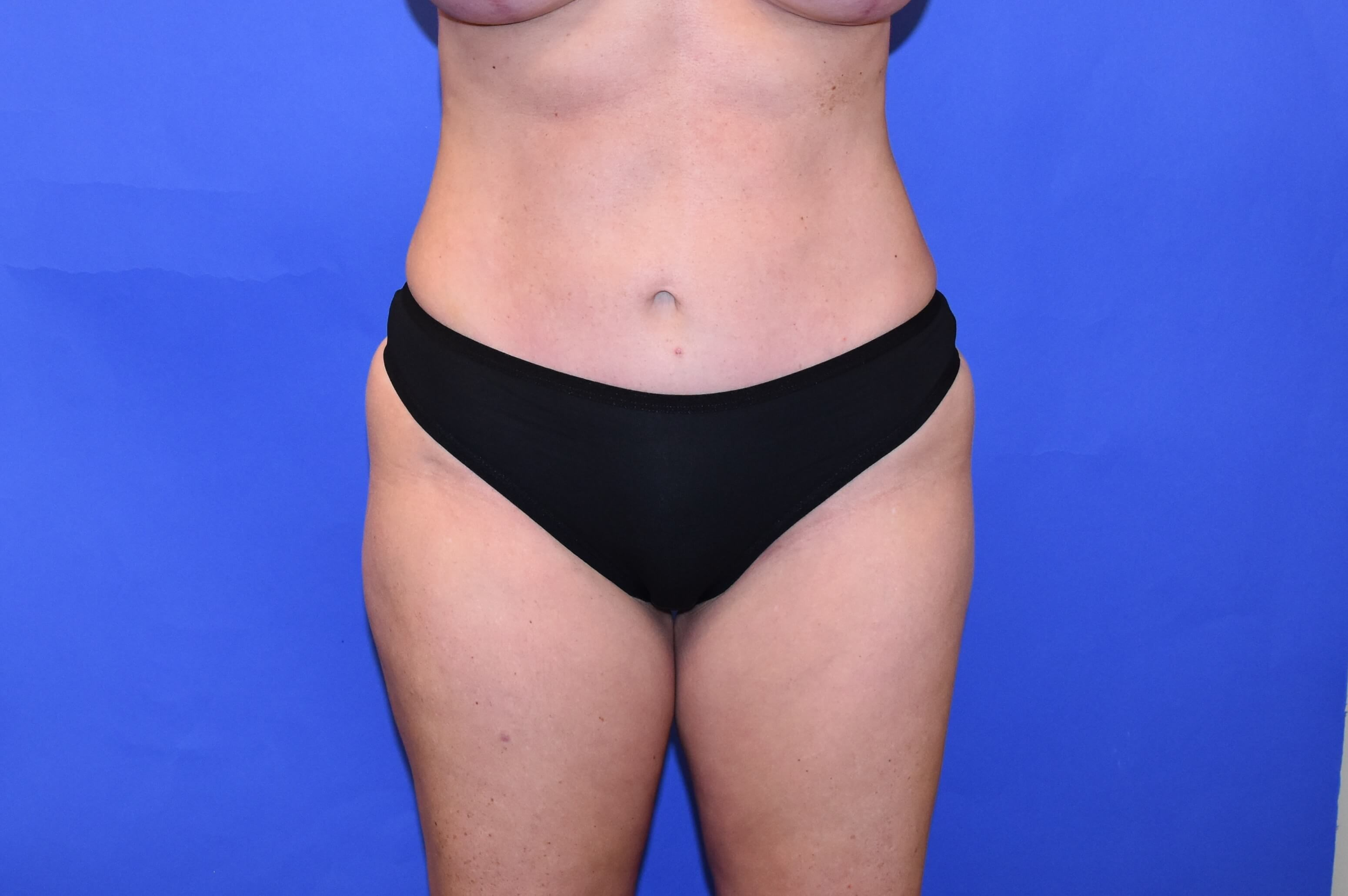 Liposuction Katy, TX After