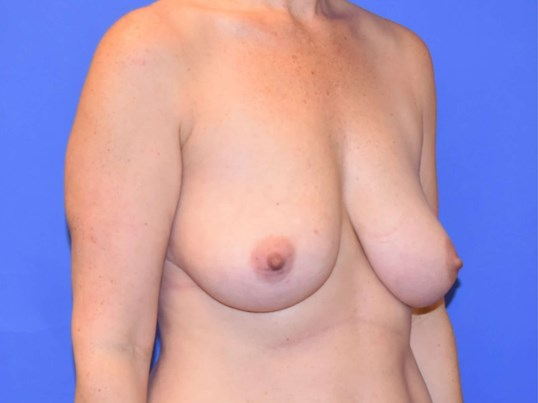 Breast Lift Katy, TX Before
