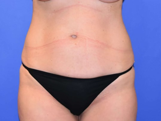 Liposuction Katy, TX Before