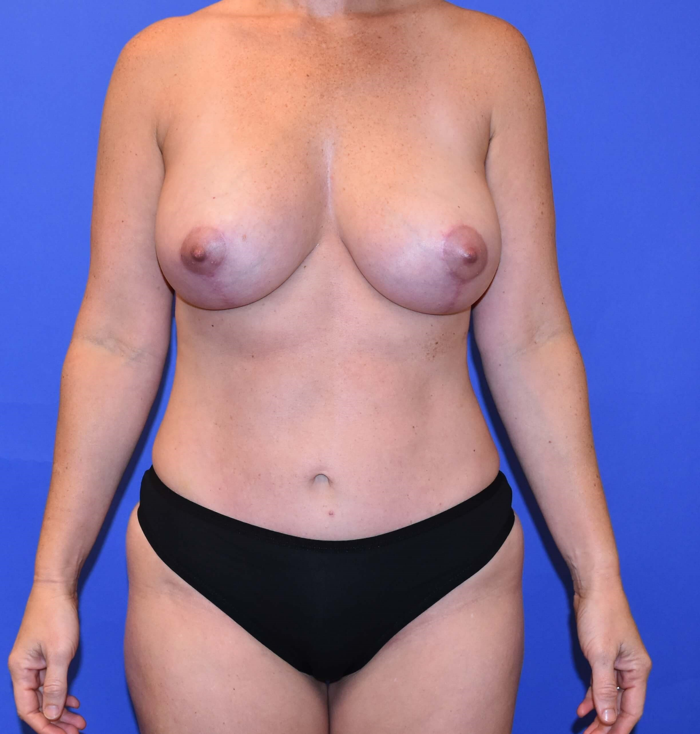 Breast Lift Katy, TX After
