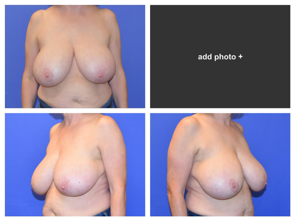 Houston Breast Reconstruction Before