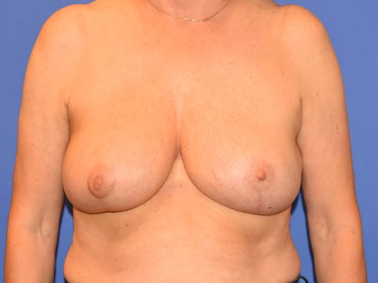 Houston Breast Reconstruction After Breast Reconstruction