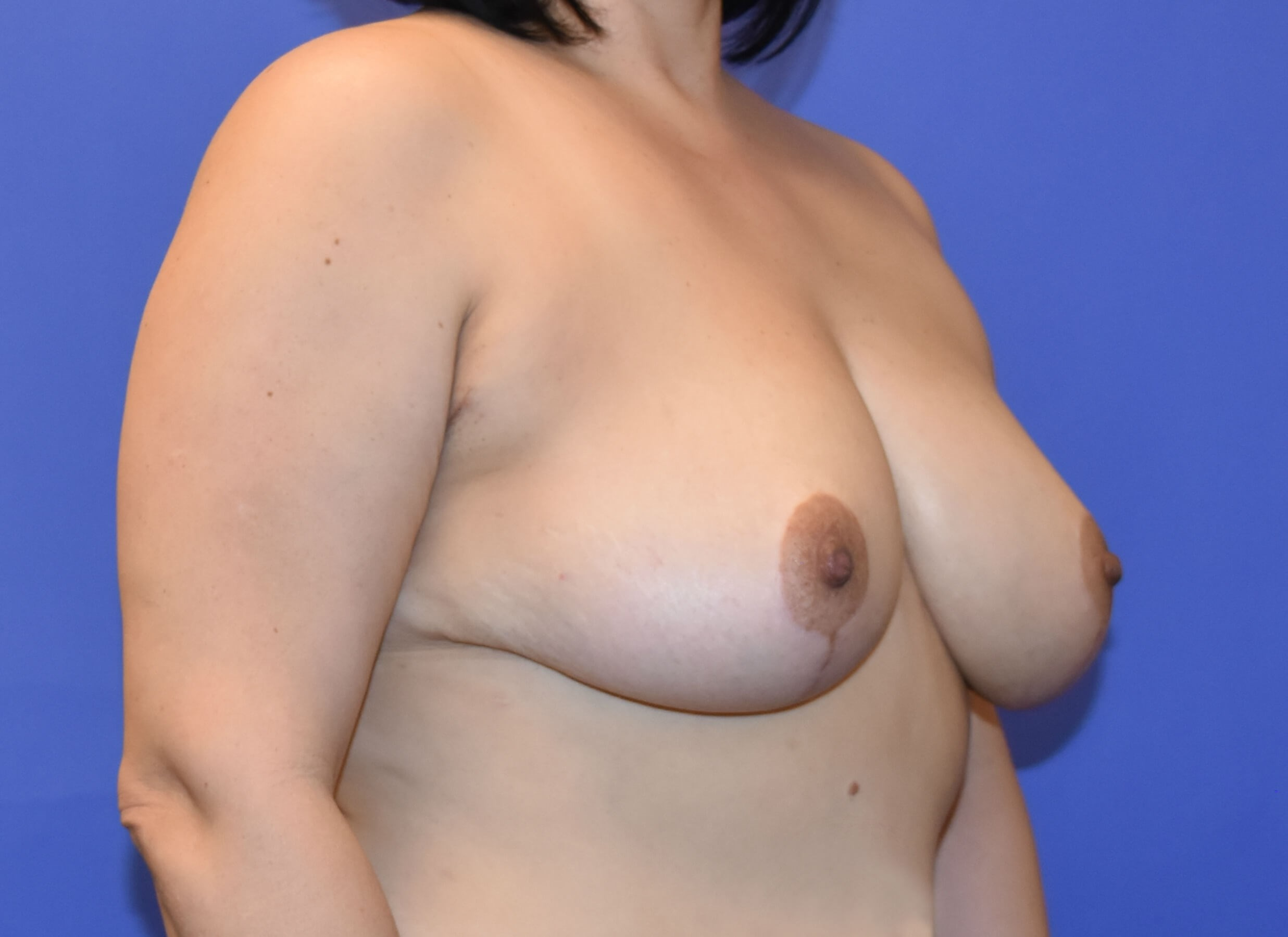 Katy, TX Breast Reduction After