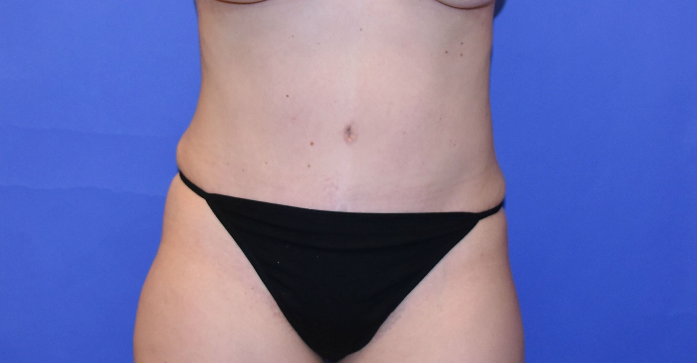 Tummy Tuck Katy, TX After