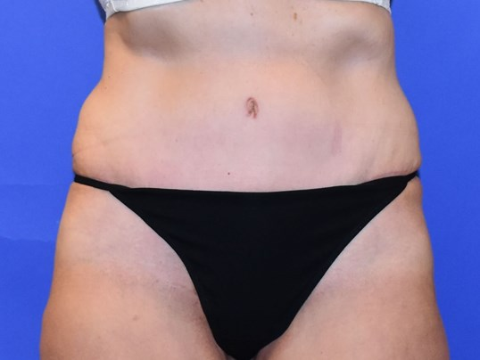 Tummy Tuck | Post Weight Loss After