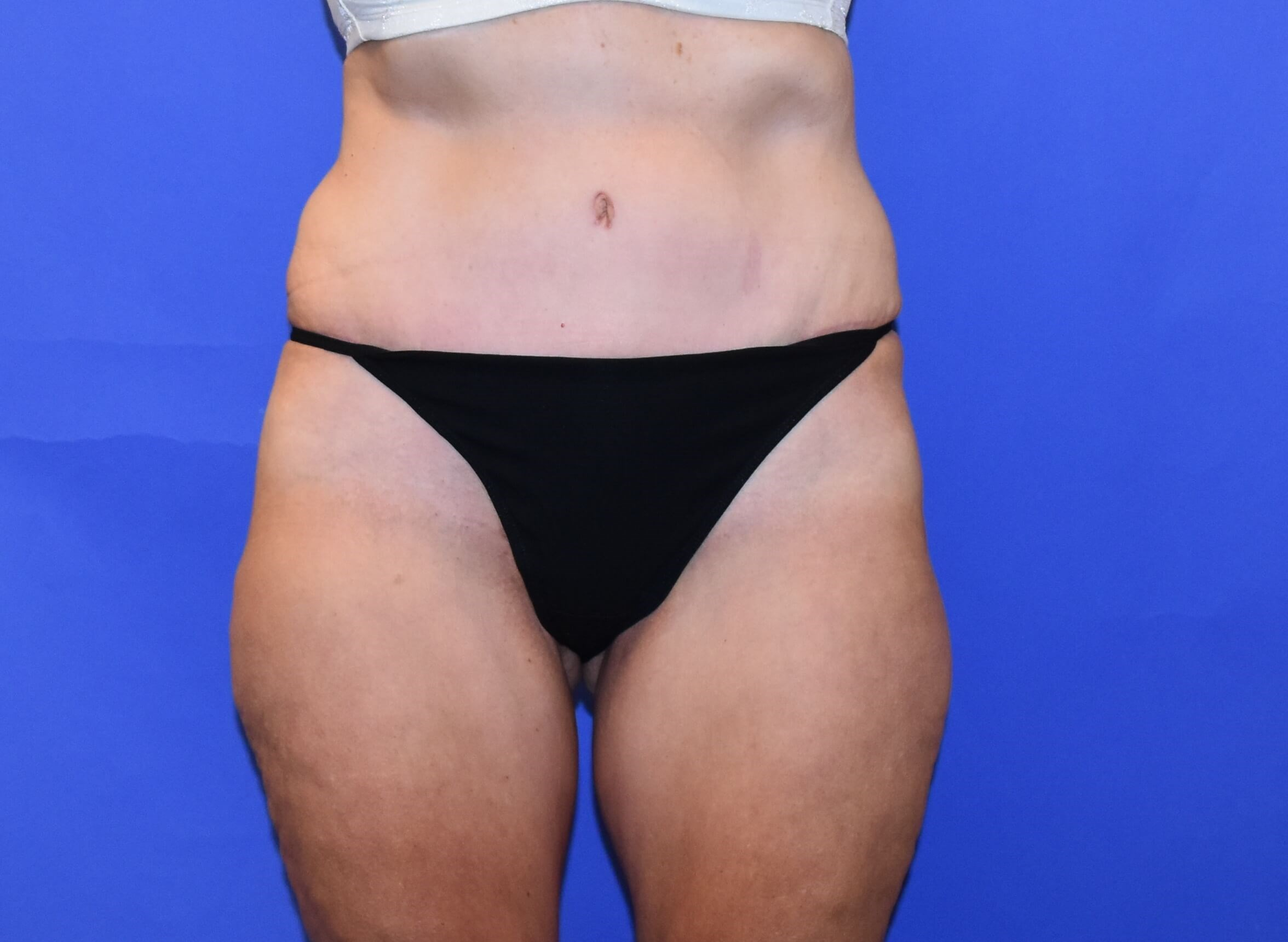 Tummy Tuck Post Weight Loss Surgery Performed On Houston Texas Female