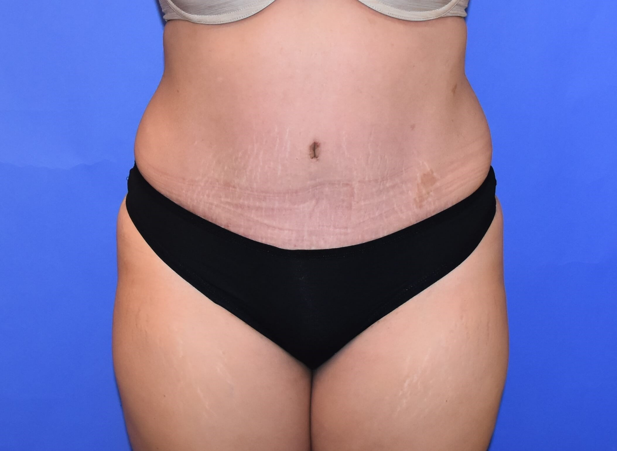 Tummy Tuck Houston, TX After