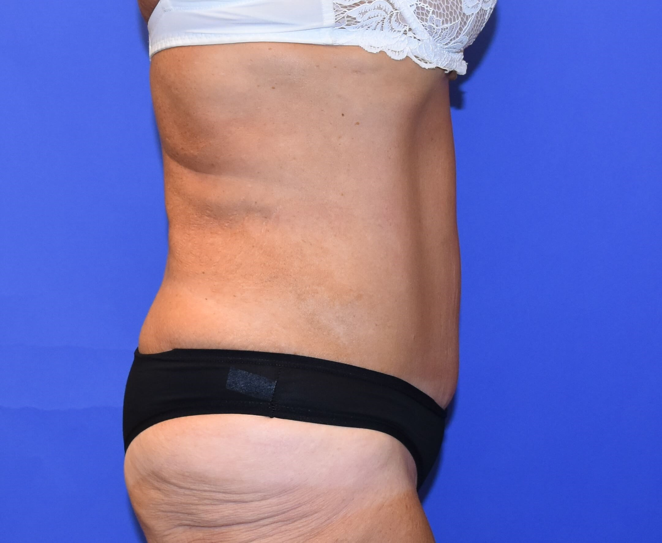 Tummy Tuck Houston, Texas After