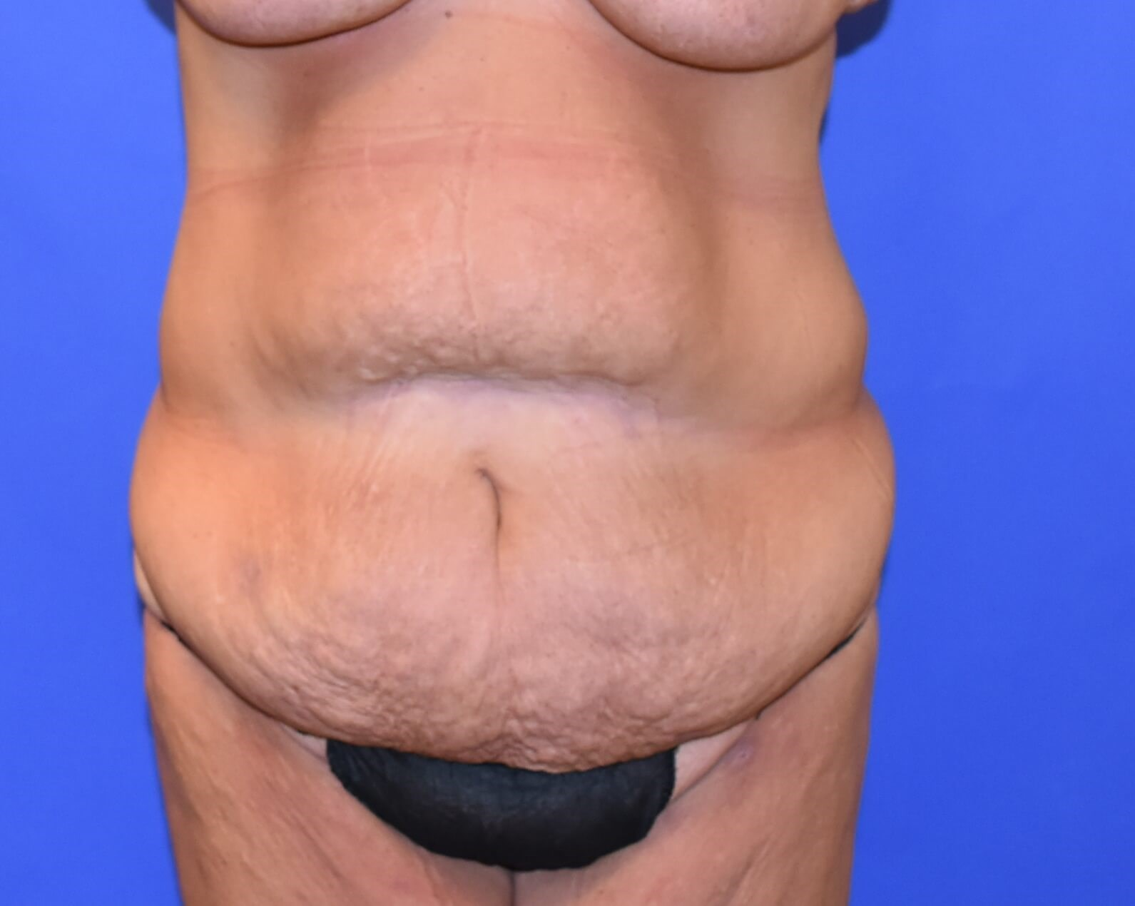 Post Weight Loss Surgery Before