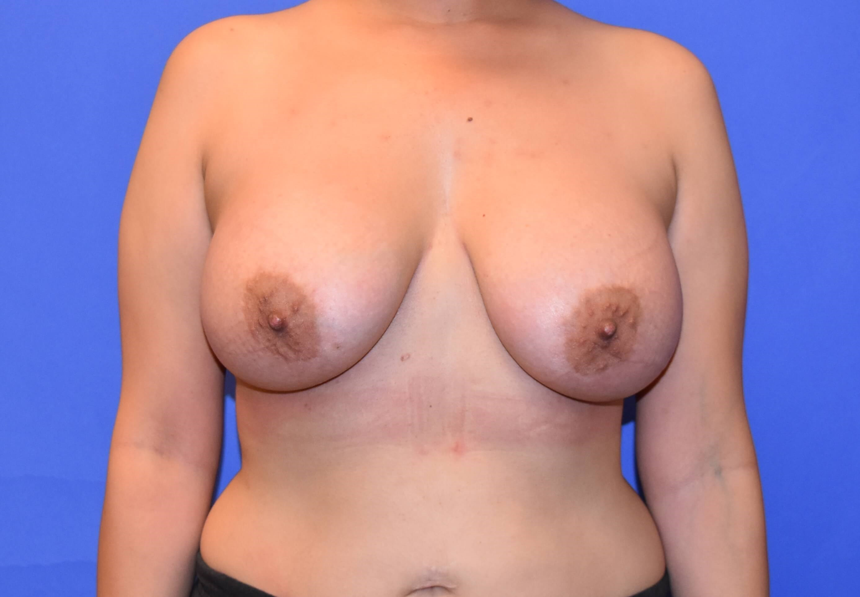 Houston Breast Augmentation After