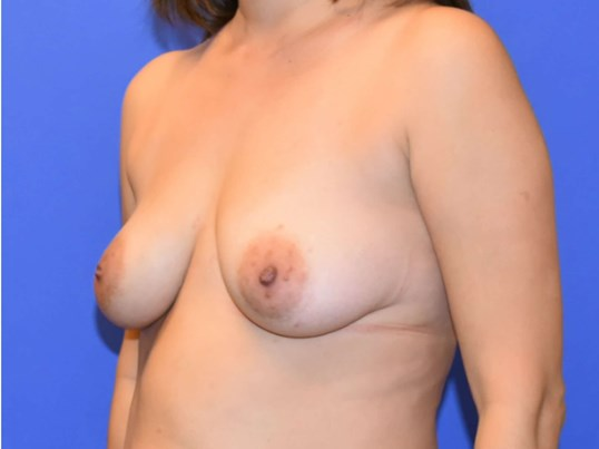 Breast Lift Houston Before