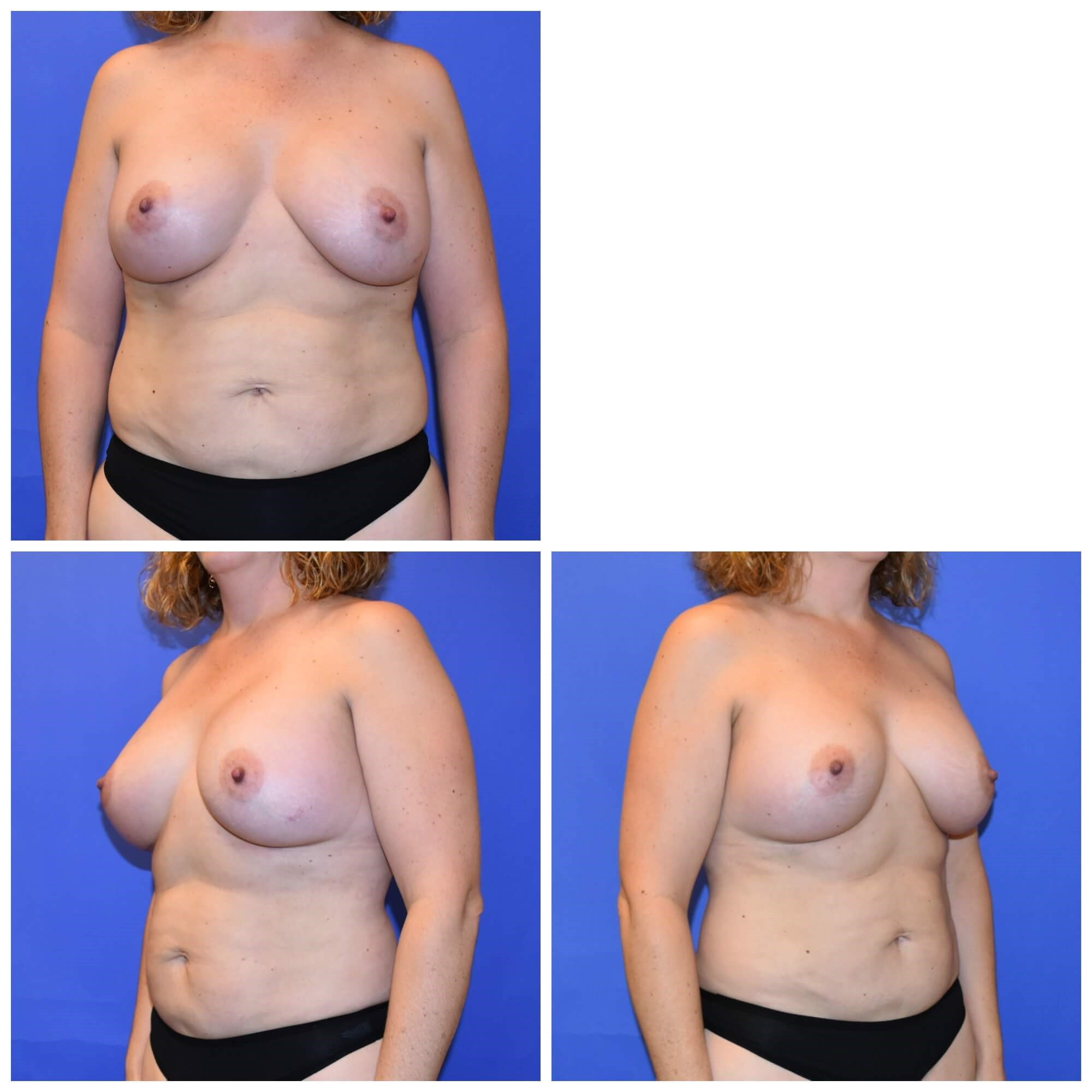 Breast Augmentation Houston After