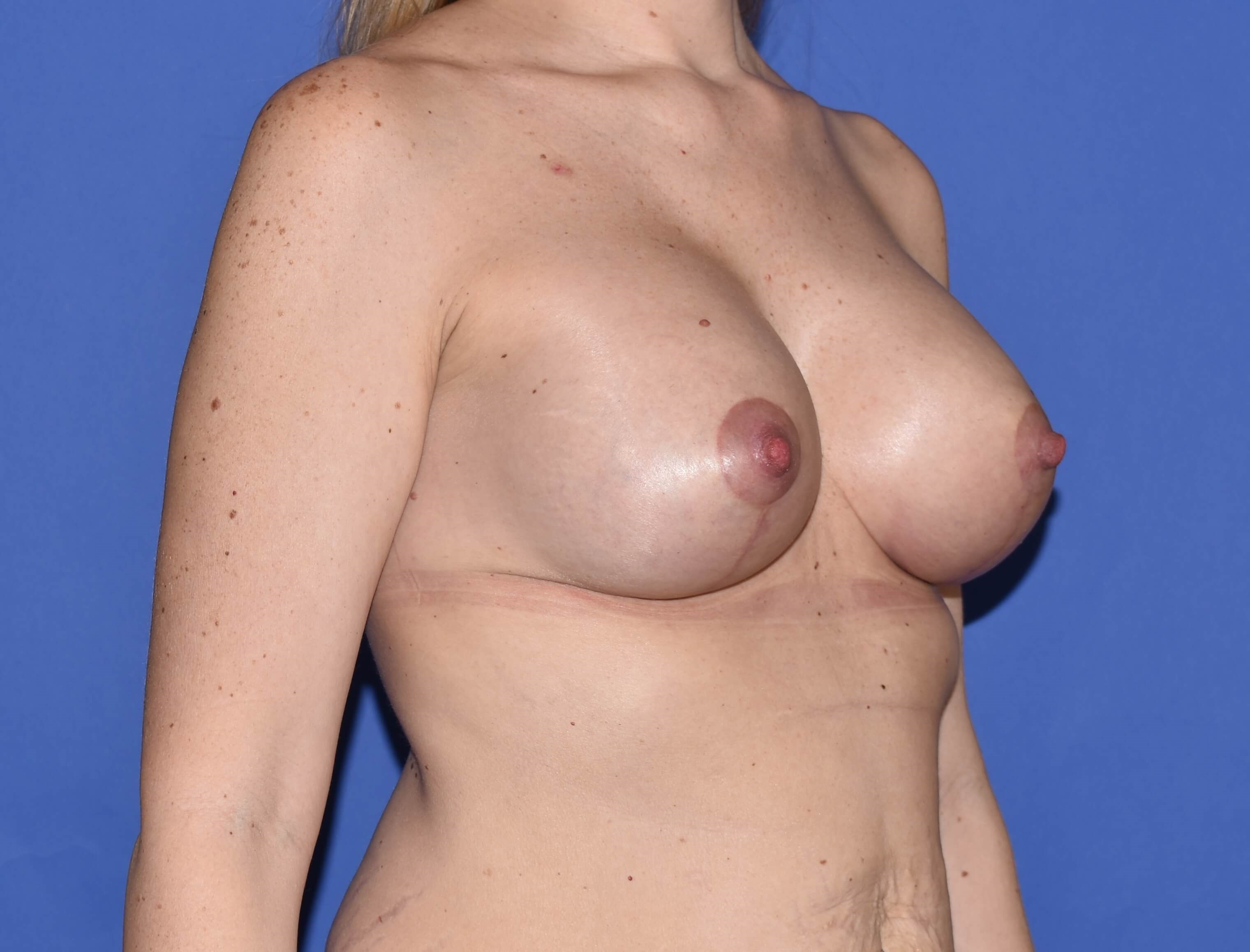 Breast Lift with Implant Katy After