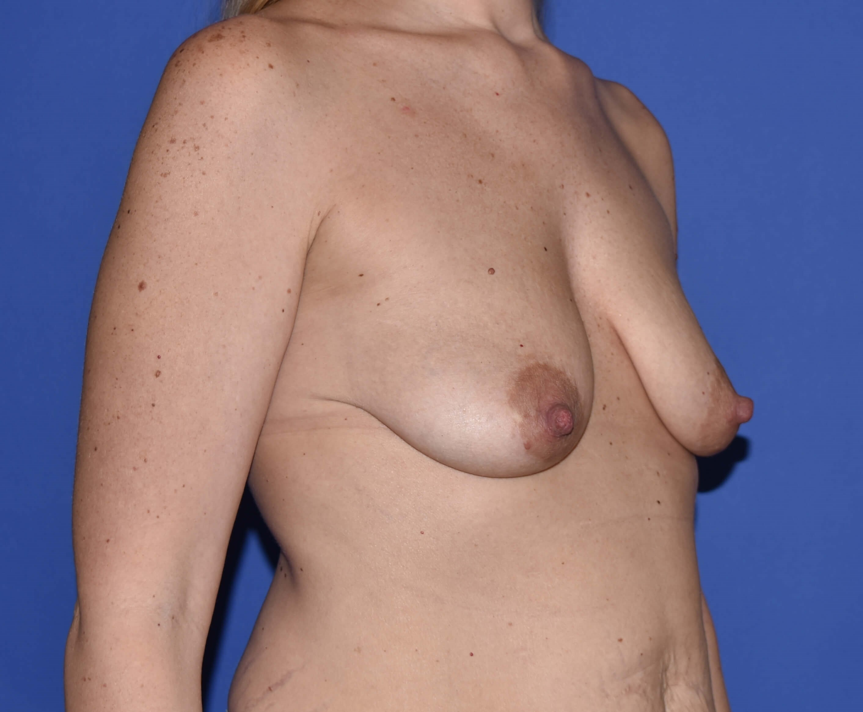 Breast Lift with Implant Katy Before