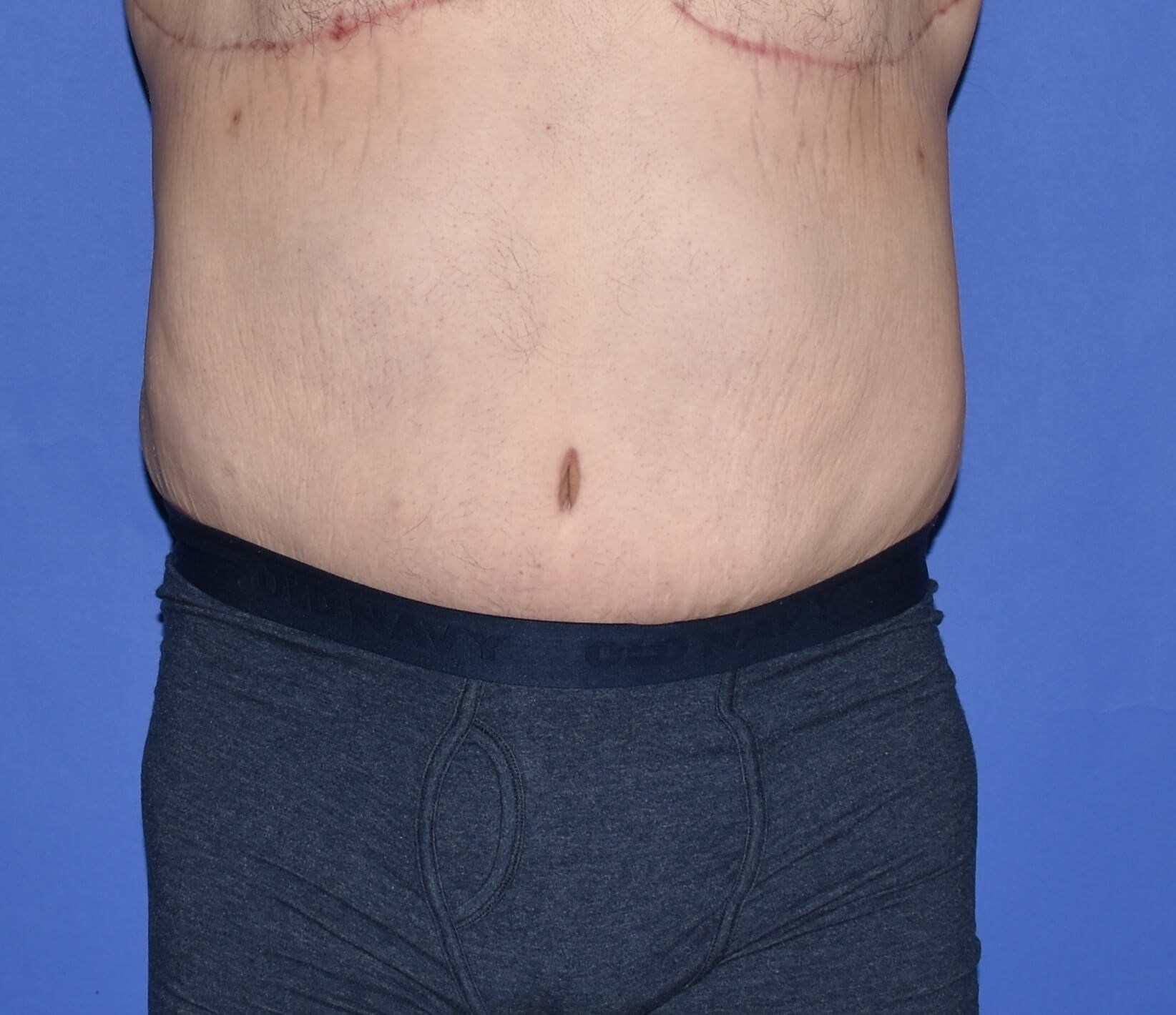 Post-Weight Loss Surgery After