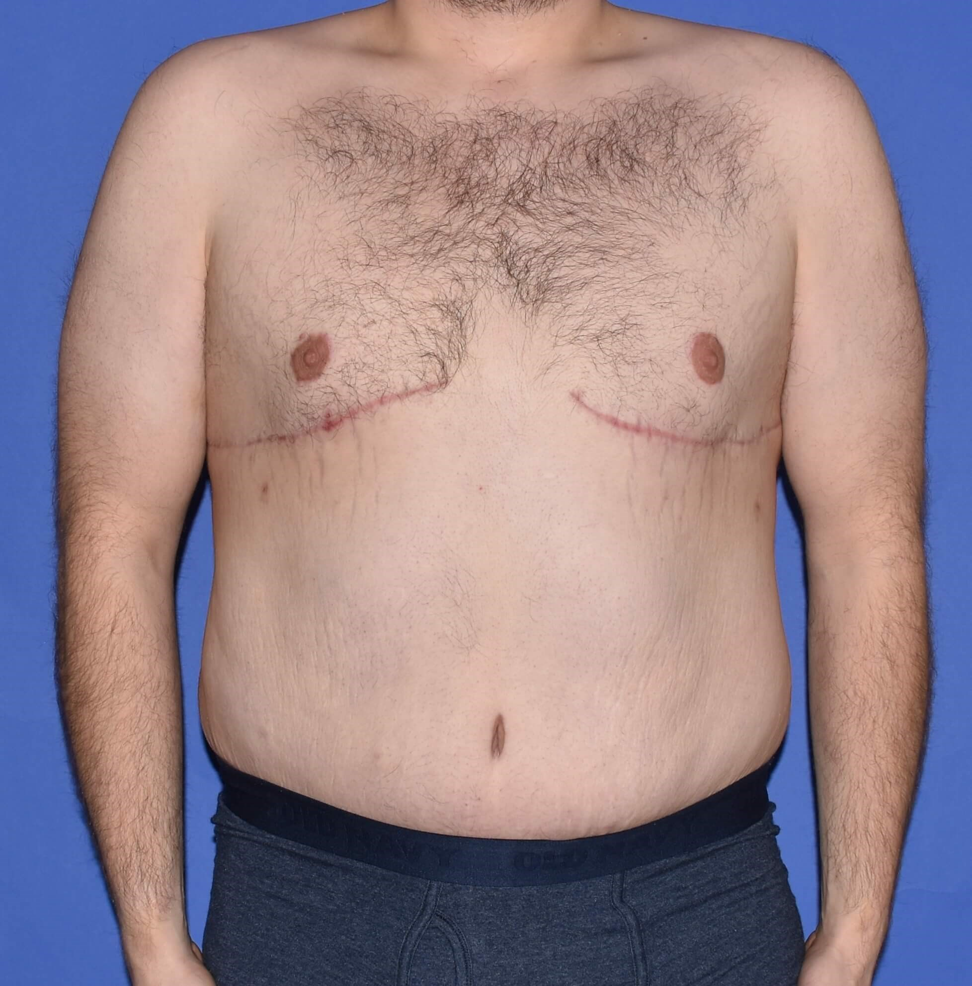 Gynecomastia Houston 4 months after surgery