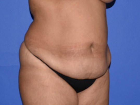 Tummy Tuck - Houston Before