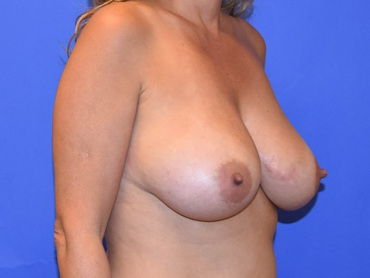 Breast Reduction Houston Before