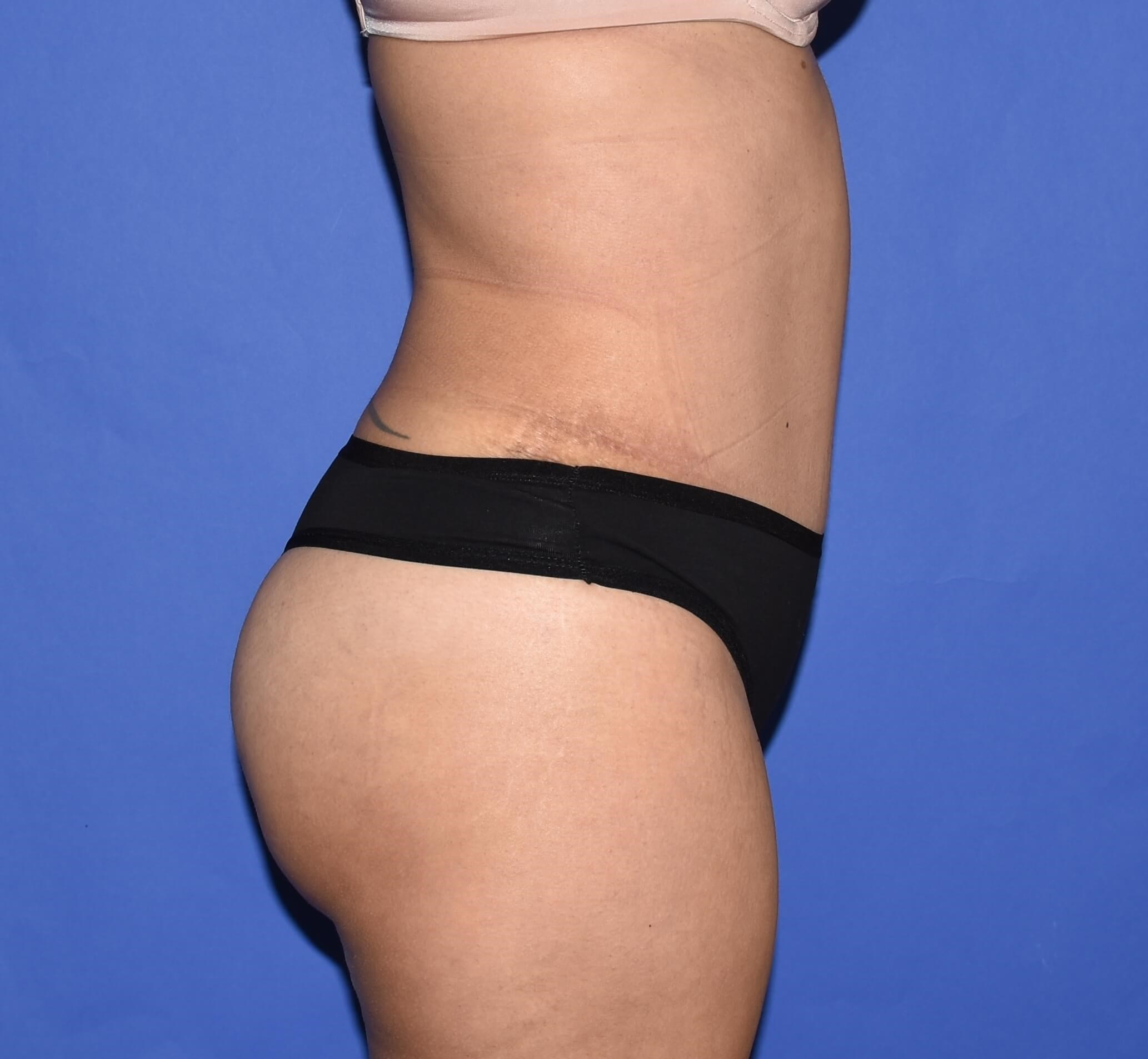 Tummy Tuck | Hernia Repair After