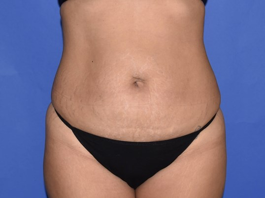 Tummy Tuck | Hernia Repair Before