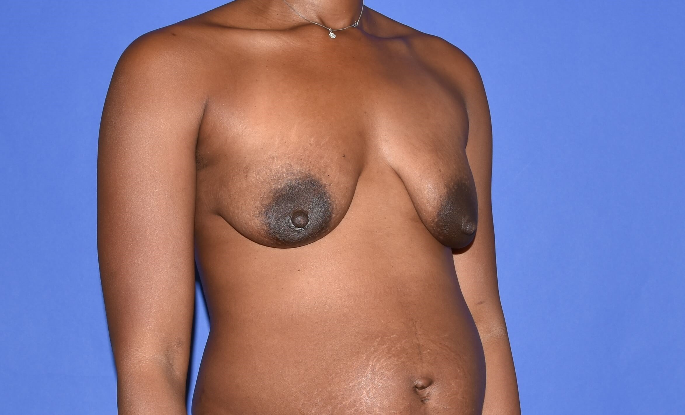 Breast Lift - Katy, TX Before
