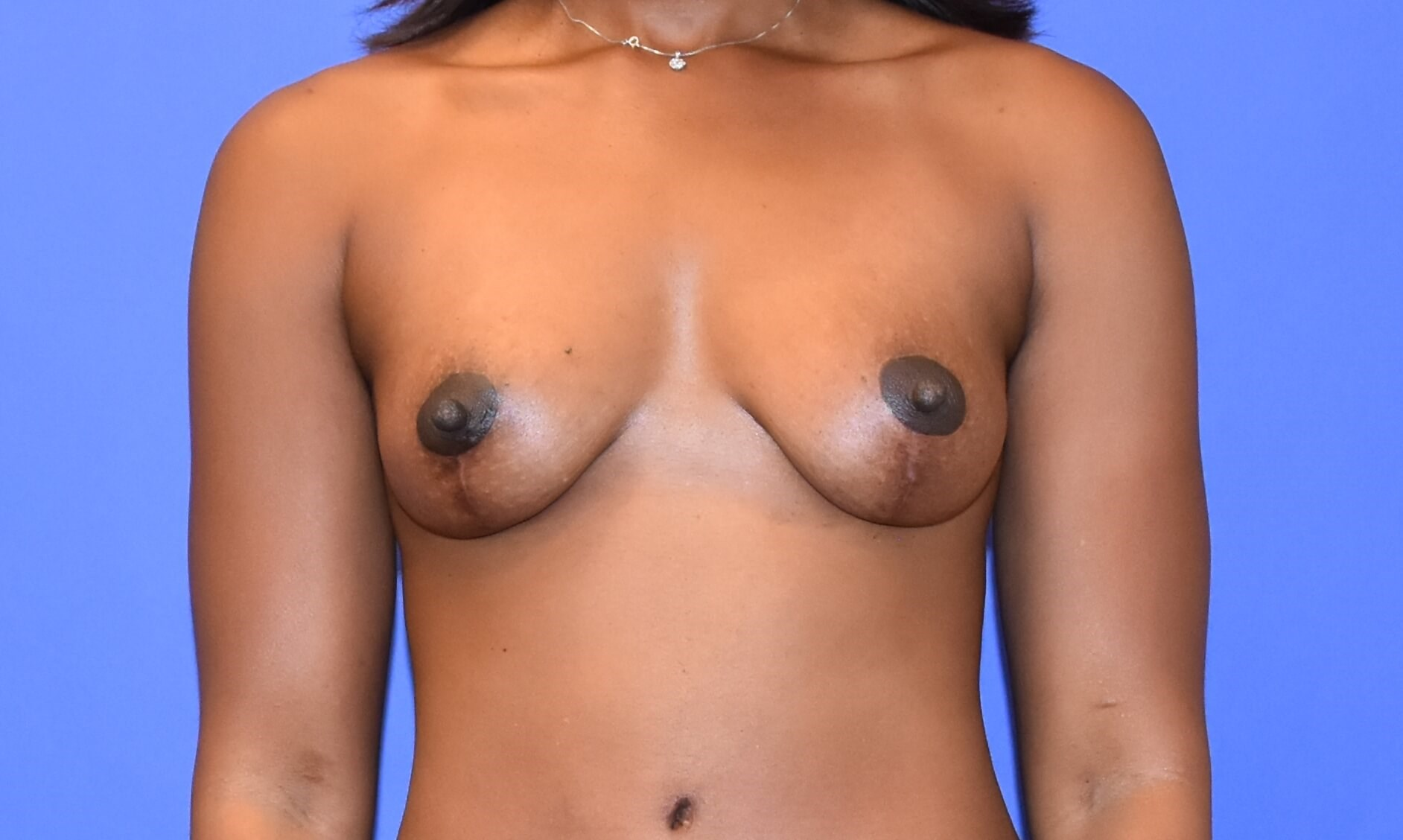 Breast Lift - Katy, TX After
