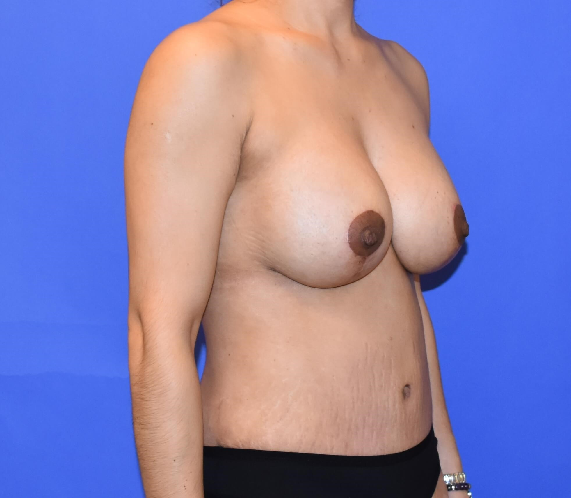 Houston Breast Lift w/ Implant After