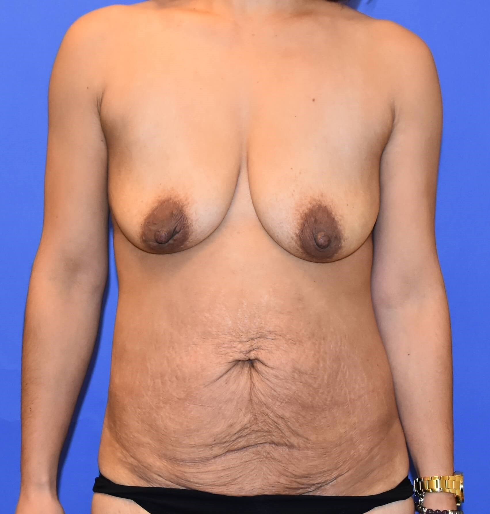 Houston Breast Lift w/ Implant Before