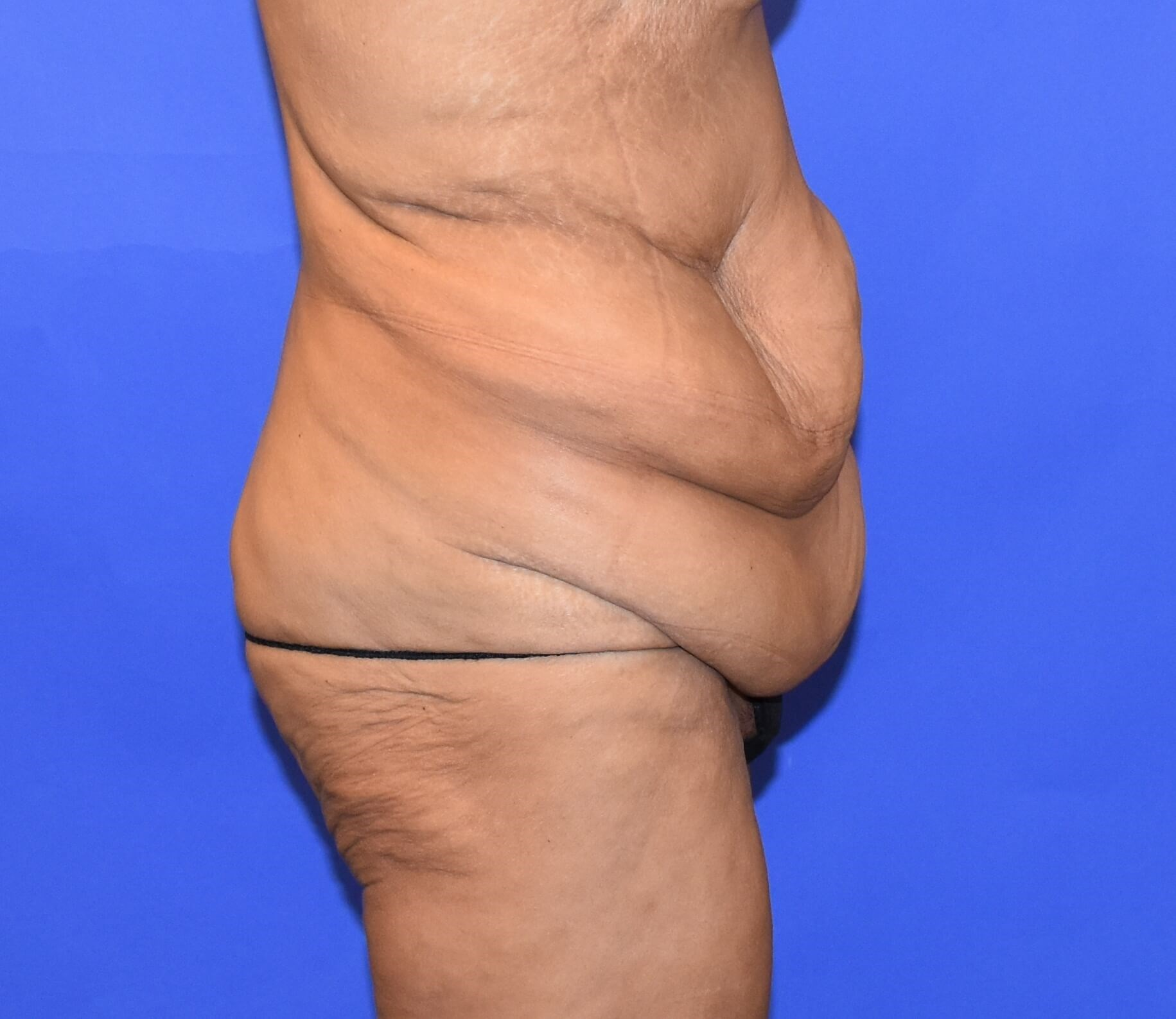 Post-Weight Loss Tummy Tuck Before