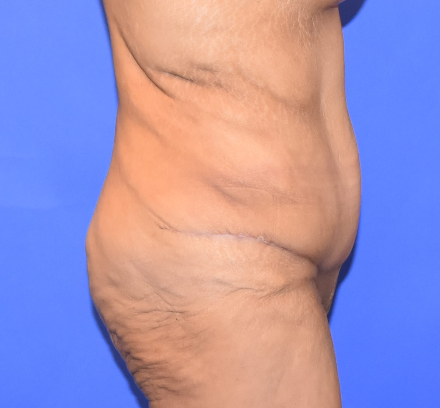 Post-Weight Loss Tummy Tuck After