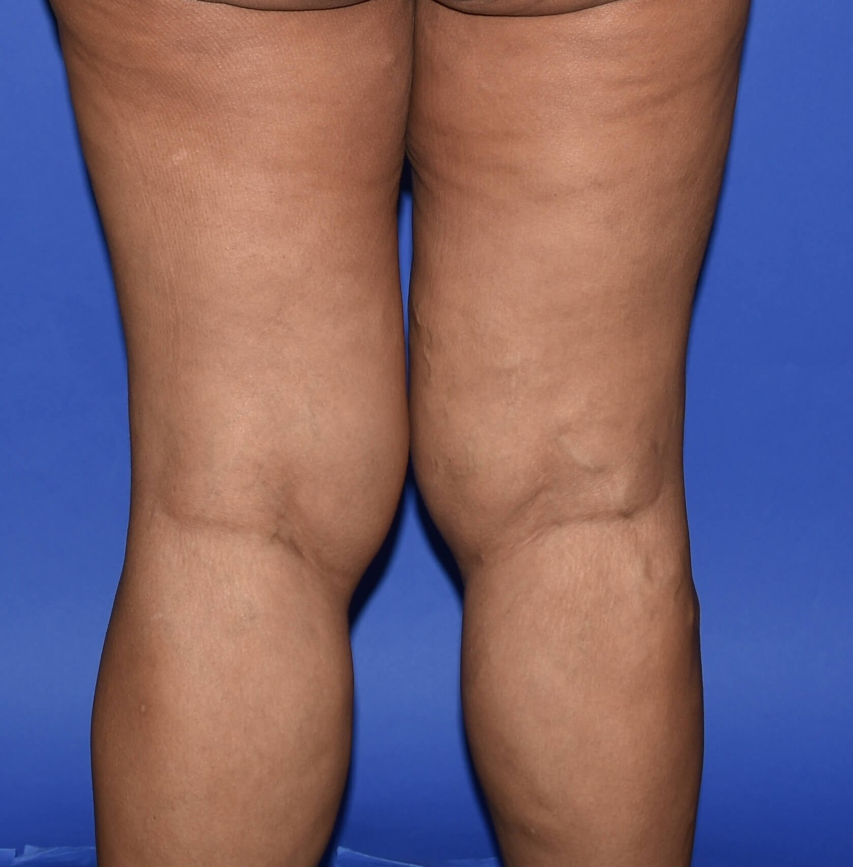 Inner Thigh Lift Katy, TX Before