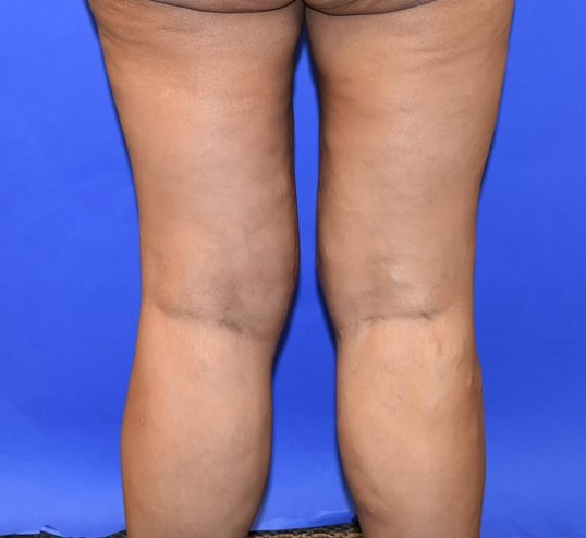 Inner Thigh Lift Katy, TX After