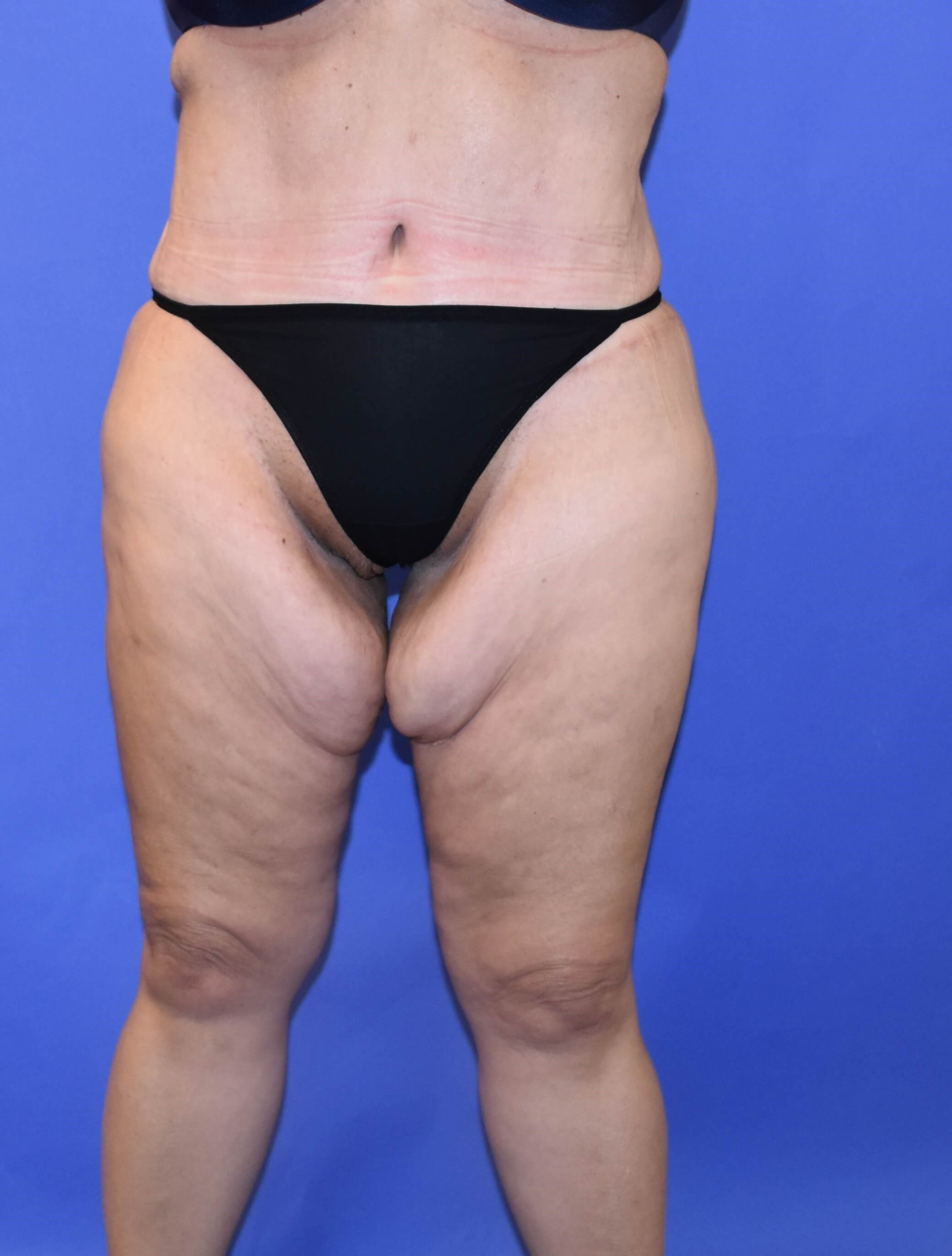 Post-Weight Loss Thigh Lift Before