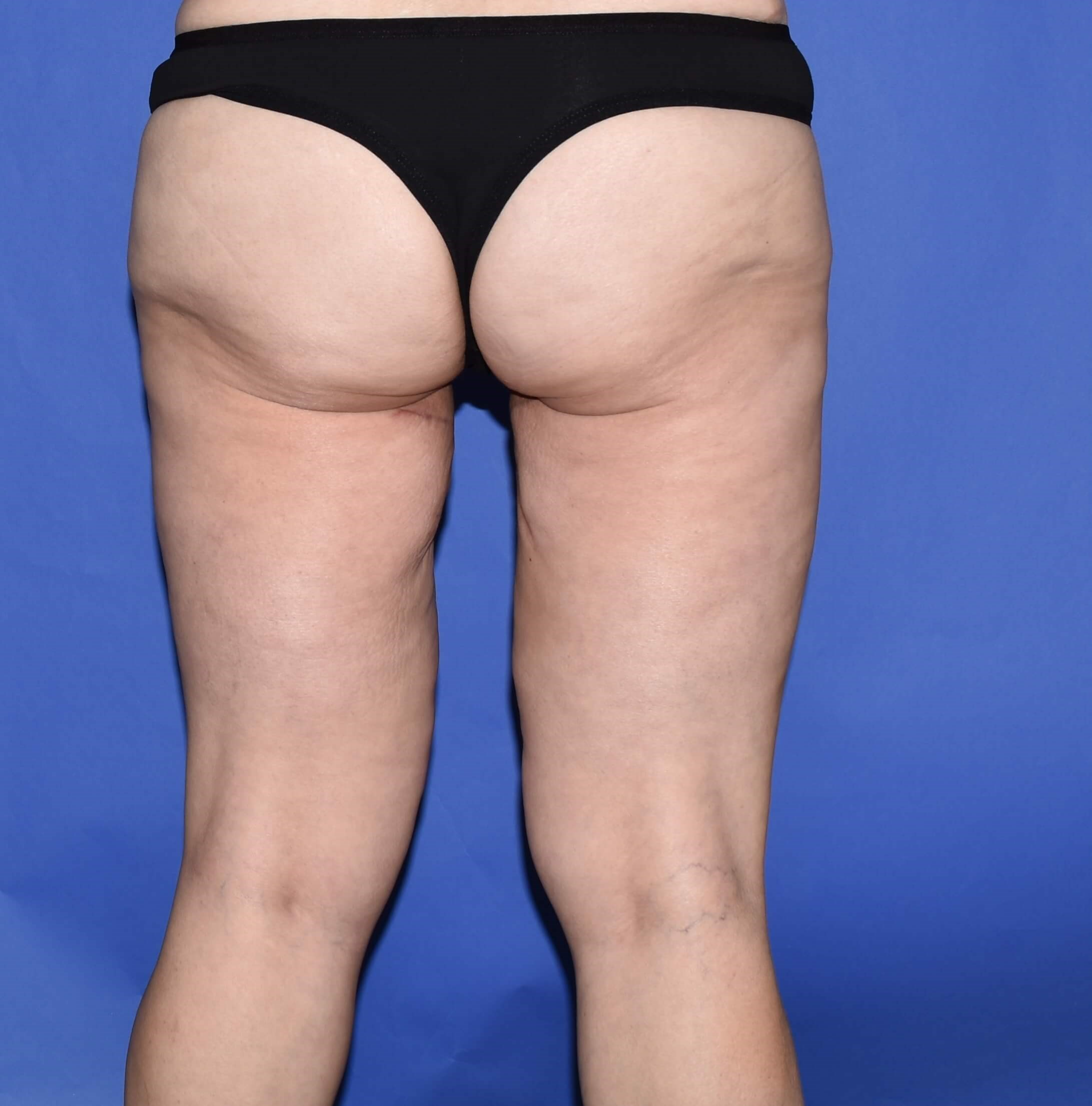 Inner Thigh Lift Houston After