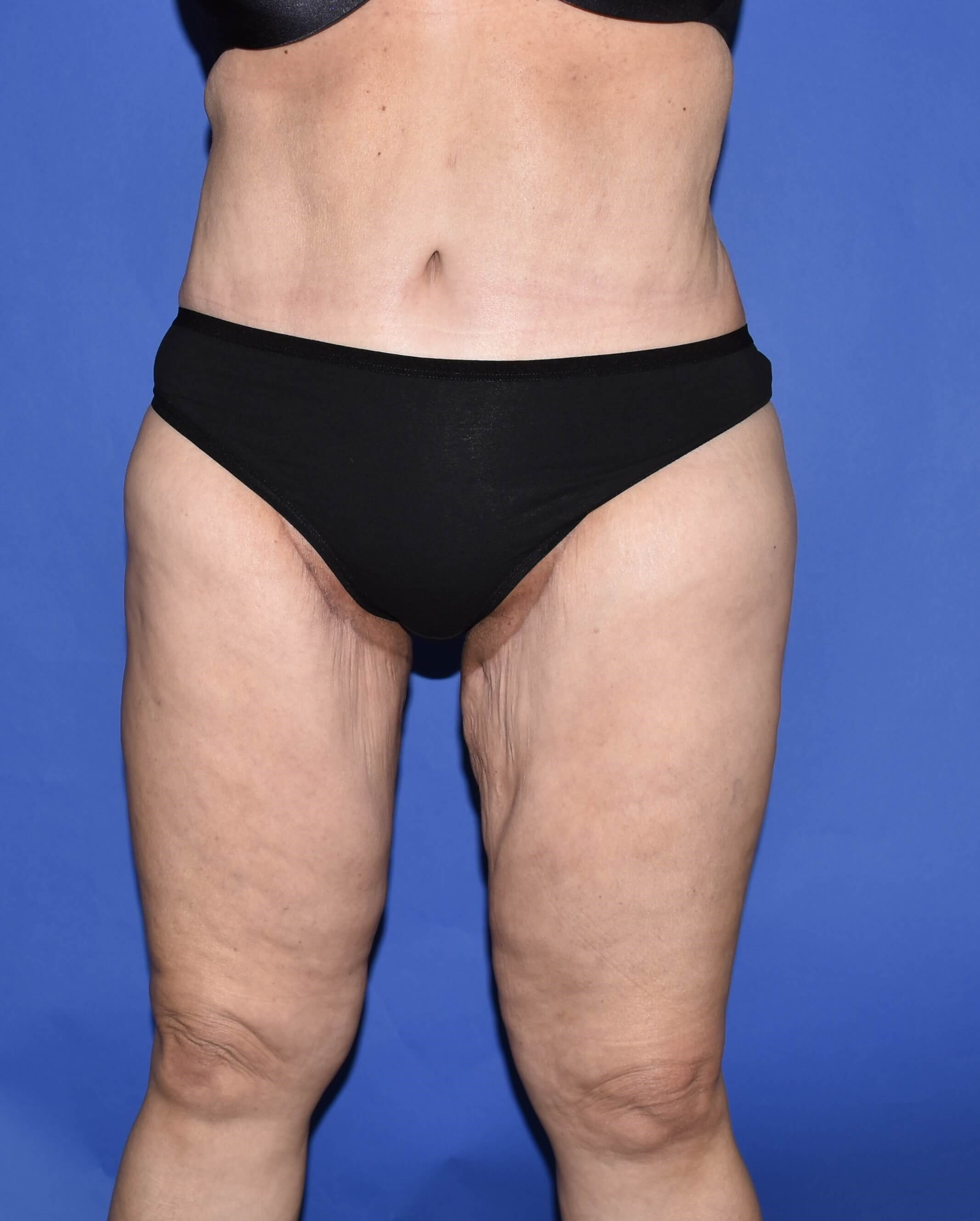 Post-Weight Loss Thigh Lift After