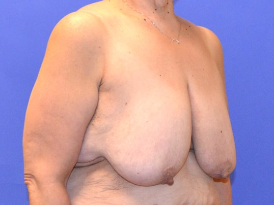 Post-Weight Loss Reduction Before