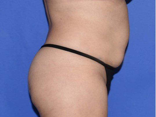 Tummy Tuck Houston Before